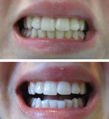 snow white teeth whitening reviews