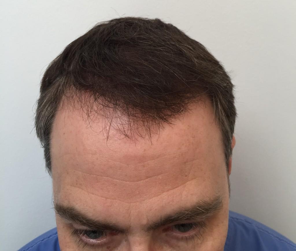 his hair clinic bad reviews